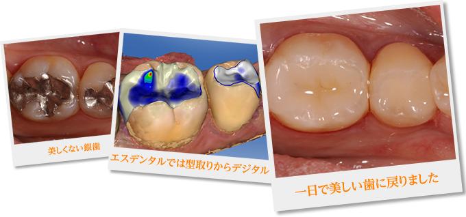 美しくない銀歯 エスデンタルでは型取りからデジタル 一日で美しい歯に戻りました