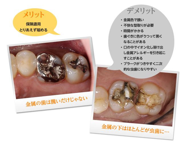 メリット保険適用 とりあえず噛める デメリット金属色で醜い 不快な型取りが必要 時間がかかる 歯ぐきに色がうつって黒くなることがある 口の中でイオン化し溶け出し金属アレルギーを引き起こすことがある プラークがつきやすく二次 的な虫歯になりやすい 金属の歯は醜いだけじゃない 金属の下はほとんどが虫歯に…