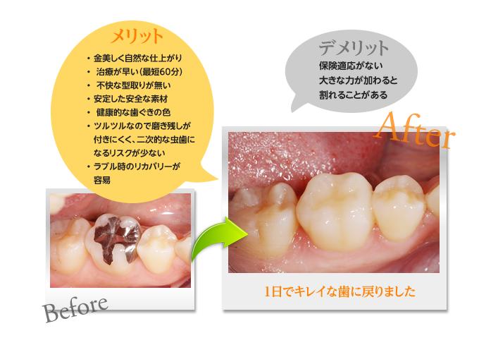 メリット 金美しく自然な仕上がり 治療が早い(最短60分) 不快な型取りが無い安定した安全な素材 健康的な歯ぐきの色ツルツルなので磨き残しが付きにくく、二次的な虫歯になるリスクが少ないラブル時のリカバリーが容易 デメリット 保険適応がない大きな力が加わると割れることがある
