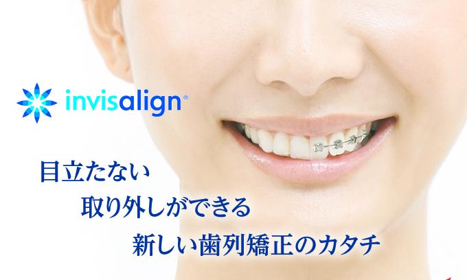 目立たない取り外しができる新しい歯列矯正のカタチ